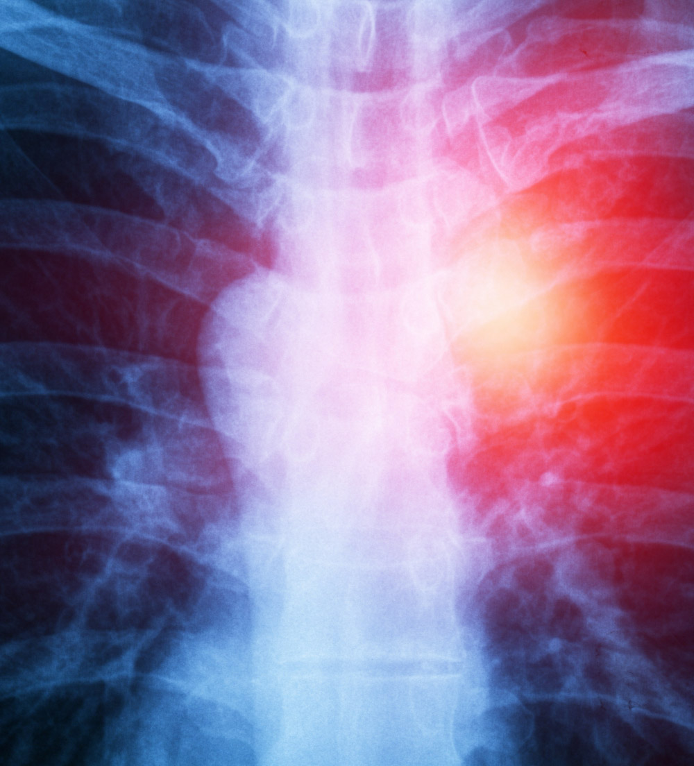 skeleton image